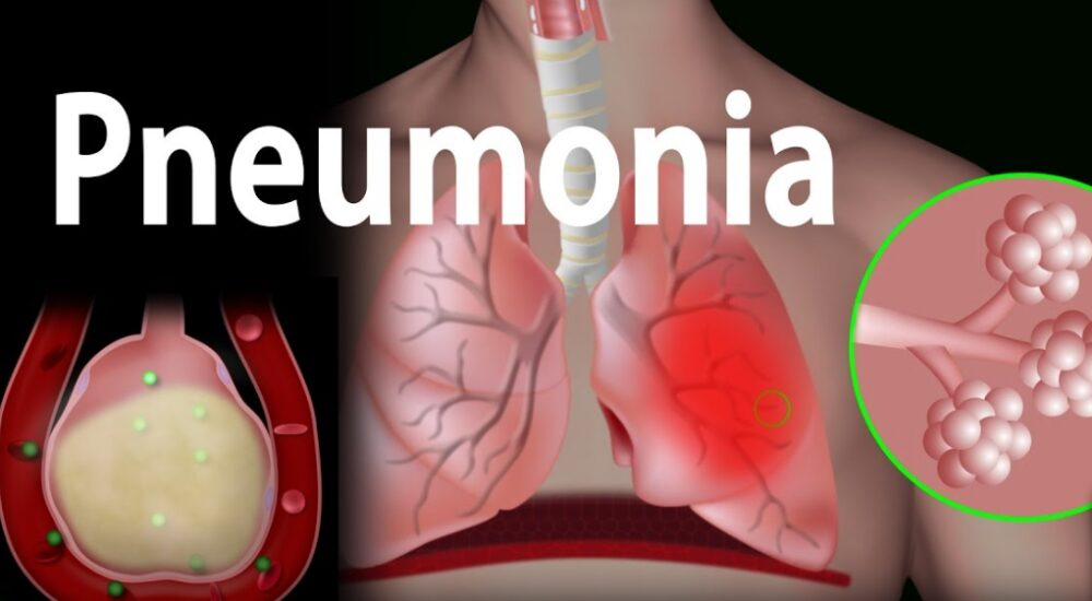 World Pneumonia Day November 12