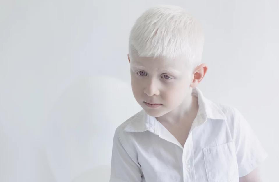 International Albinism Awareness Day June 13
