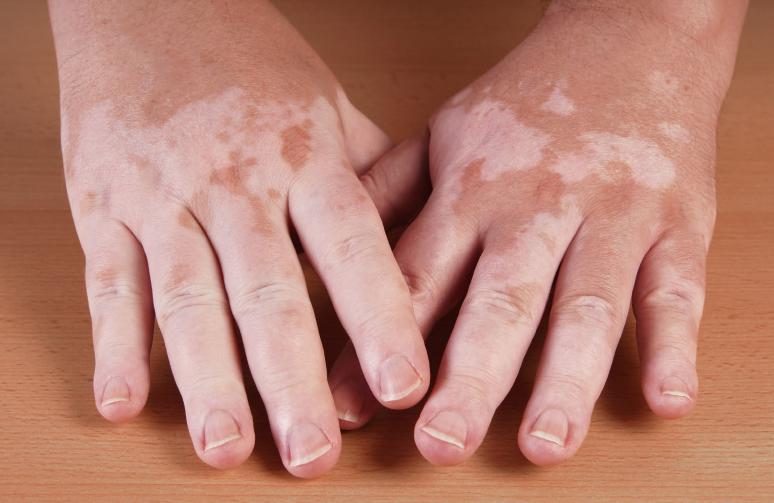 World Vitiligo Day June 24
